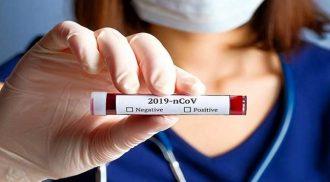 coronavirus messina