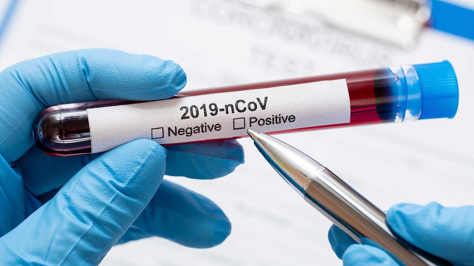 foto di fiala con tampone per il coronavirus